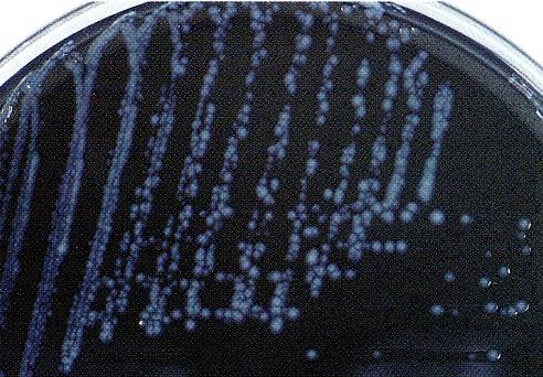 ลิจิโอเนลโลซีส (Legionellosis) โรคที่มากับเครื่องปรับอากาศ